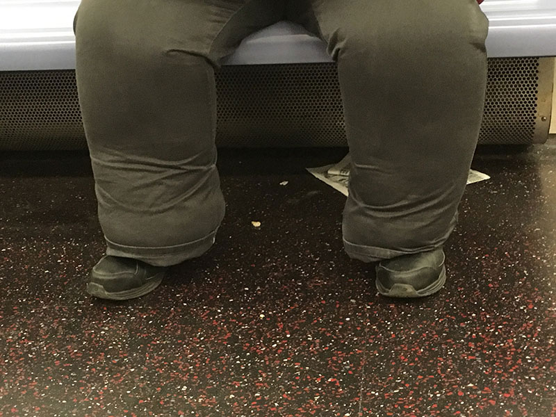 Man on subway with swollen legs